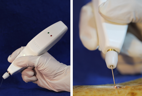 Plexr device - plexr soft surgery