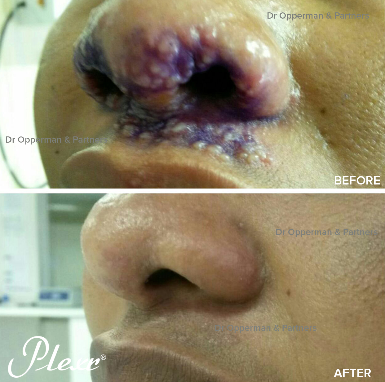Herpes Zoster cured by single Plexr treatment